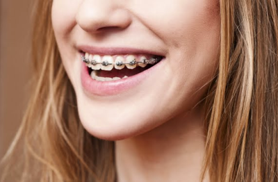 This is the image for the news article titled Playing Sports with Braces
