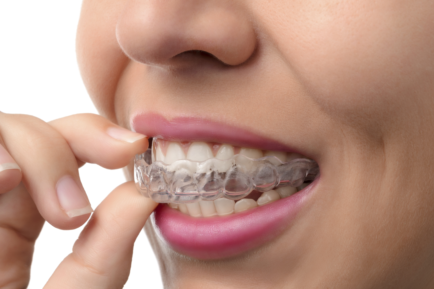 This is the image for the news article titled The Clear Pros of Invisalign Teen