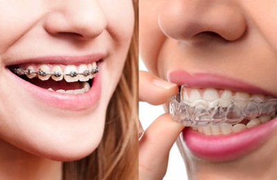 This is the image for the news article titled Braces vs. Invisalign